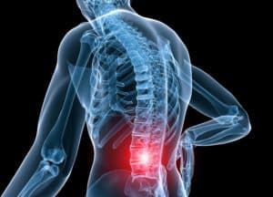 Preferred Pineville Chiropractic Center treating patients suffering from lower back pain, sciatica.