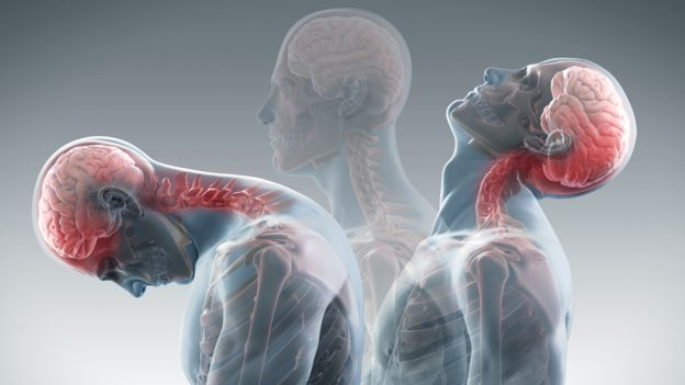 Whiplash injuries can be helped by an auto accident injury chiropractor