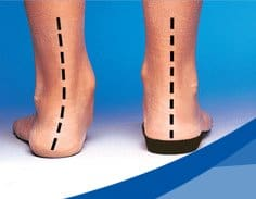 A comparision of foot posture with and without orthotics in a South Charlotte Chiropractic center