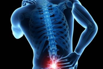 herniate disc pain relief by using chiropractic care from a Charlotte NC chiropractor in south Charlotte