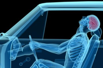 auto accident chiropractor in Charlotte treating whiplash injuries