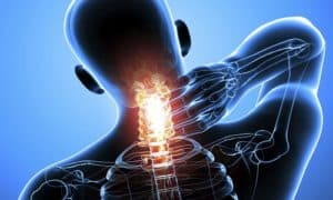 car accident chiropractor