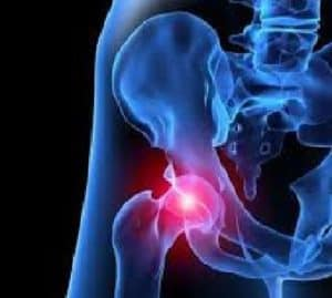 Hip pain being helped by a doctor at the leading Pineville chiropractic center