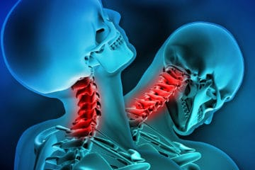 car accident chiropractor treating whiplash injuries in Charlotte NC