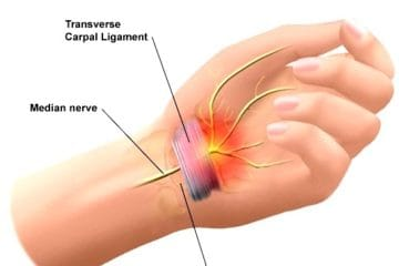 carpal tunnel syndrome relief in Charlotte NC