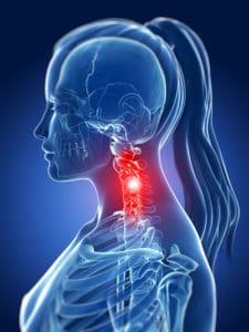 pinched nerves in the neck producing pain into the shoulder and radiating arm pain
