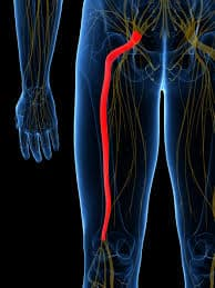 pinched nerve in leg producing radiating pain into the leg; sciatica.
