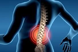 pinched nerves in the lower back producing low back pain