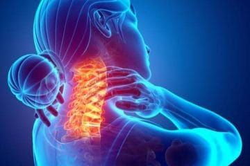 neck pain from car accidents