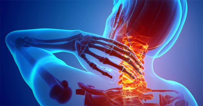 Quiropráctico de dolor de cuello cerca de mí en Charlotte NC que trata a pacientes con problemas de agrietamiento de cuello.