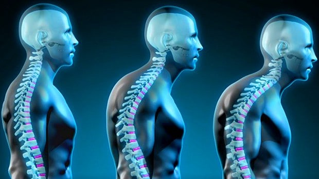 good posture with the help of chiropractor Charlotte NC