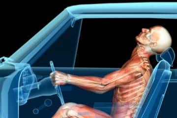 auto accident whiplash