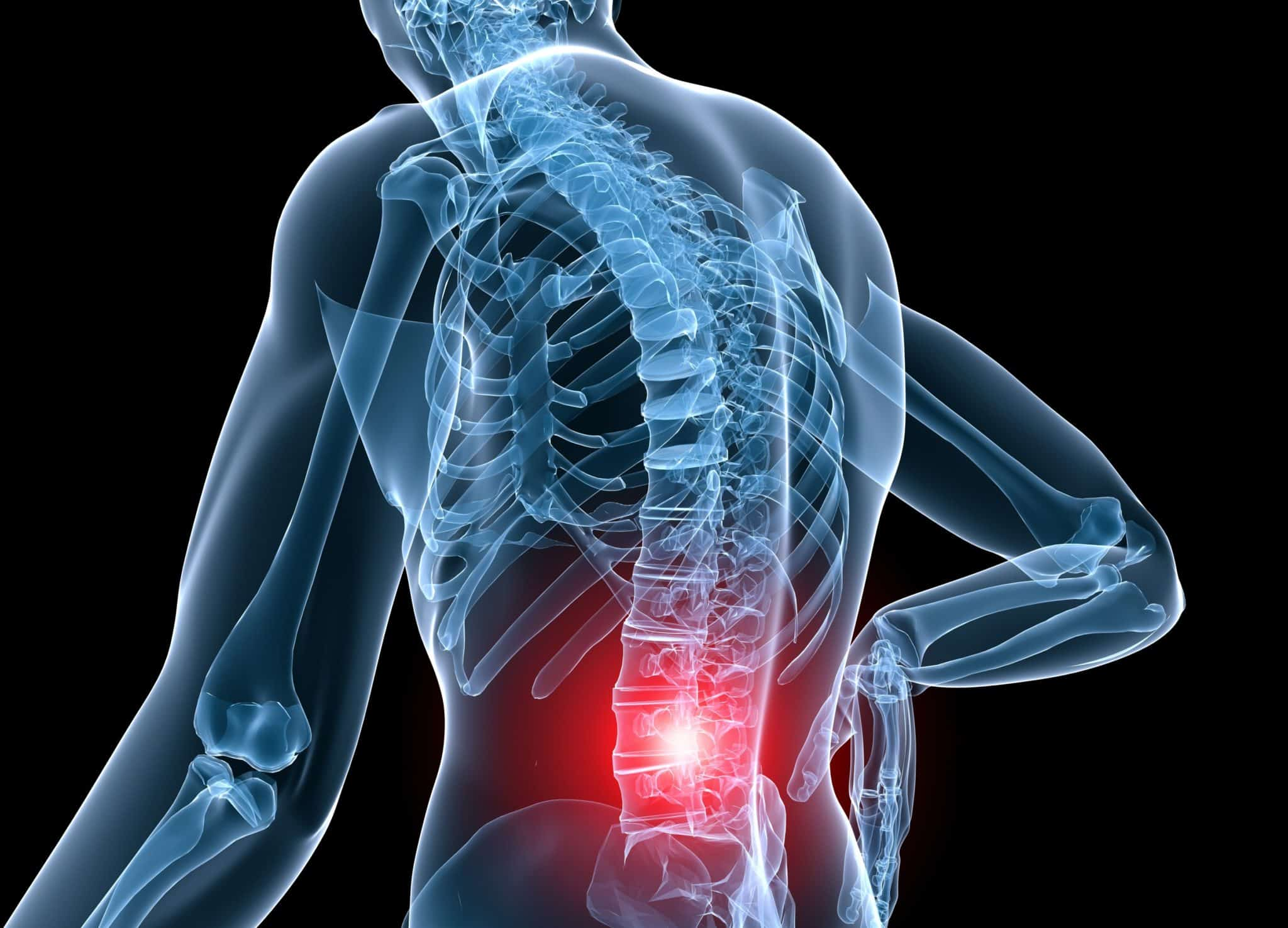 chiropractic care and back pain to provide relief for chronic back pain