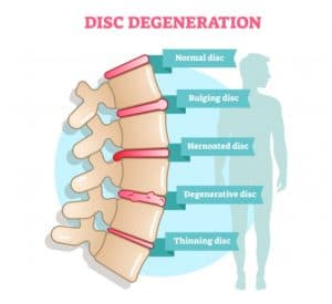 chiropractic care and help degenerative disc disease