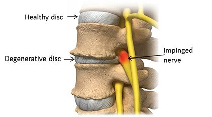 degenerative disc disease treatment Charlotte NC
