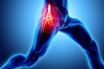 Chiropractic can help ease hip pain in Charlotte NC