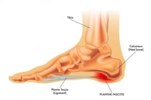 Plantar fasciitis is a painful condition that responds to chiropractic care and stretches and is a common foot problem that can be helped with shoe inserts and foot stretches that can actually prevent plantar fasciitis