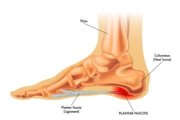 Plantar fasciitis is a painful condition that responds to chiropractic care and stretches