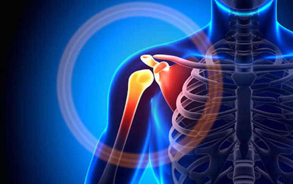 There are many causes of sholder pain, here are 14 of the most common causes of shoulder pain.